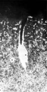 Трещина, обусловленная сотовыми пузырями