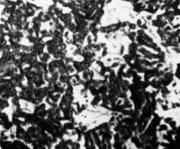 Мелкозернистая структура ( низкая температура конца ковки).х100