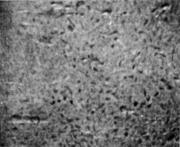 Язвины и поры по всей поверхности