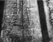 Продольная трещина на поверхности непрерывнолитой заготовки