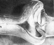 Стальная труба, разорванная и смещенная в редукционном стане