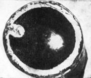 Труба со складчатостью