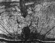 Флокены в изломе литой стали (сталь 25ХНЗМ после гомогенизации и термического ул