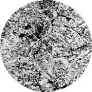Микроструктура стали  9Х2: цементит, бейнит, аустенит, перлит