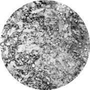 Микроструктура стали  9Х2: мартенсит, аустенит, цементит