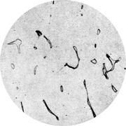 Микроструктура стали Х18Н9СМР: аустенит, феррит